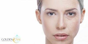 جوانسازی پوست صورت با لیزر