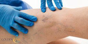 لیزر واریس ،بهترین روش درمان واریس پا