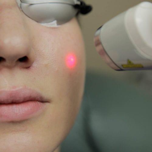 لیزر ضایعات عروقی یا لیزر PDL چیست؟