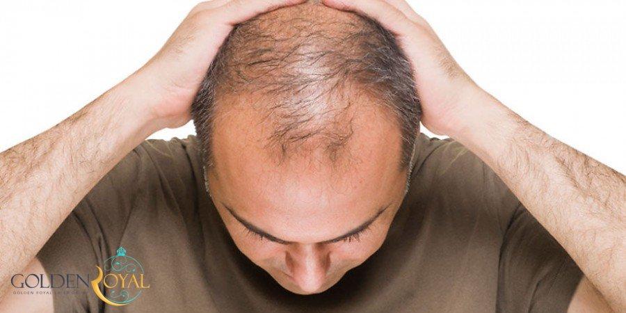 درمان ریزش مو با پی آر پی PRP