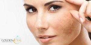 مزوتراپی ضد لک چیست؟
