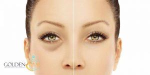 درمان سیاهی زیر چشم با ۱۰ روش کاملا طبیعی