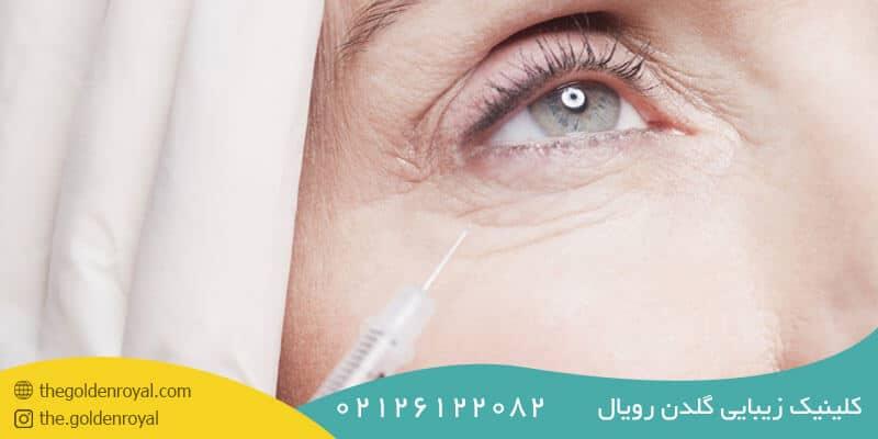 مراحل تزریق ژل زیر چشم