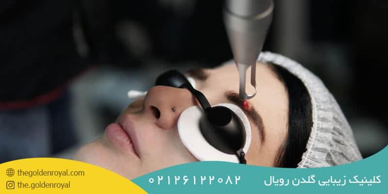 مراقبت های بعد از لیزر ابرو