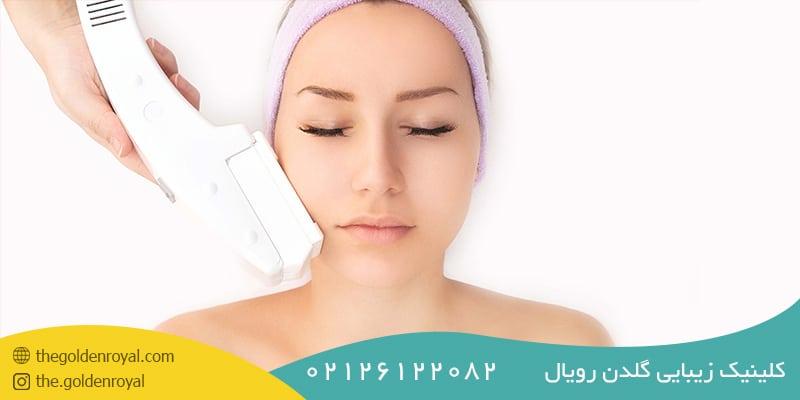 دستگاه لیزر مناسب برای انواع پوست و مو
