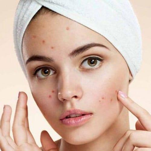 5 روش موثر برای درمان جوش صورت