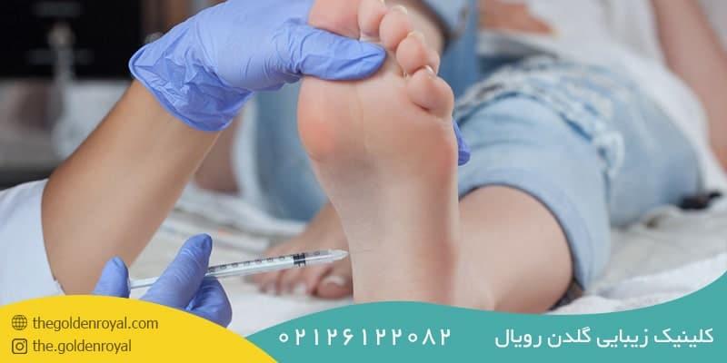 تزریق بوتاکس کف دست و پا درد دارد؟